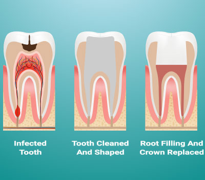 Root Canal Therapy in Willow Grove, PA - Heisler & Giannetti Family Dentistry