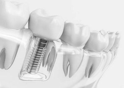 Dental Implants in Willow Grove, PA - Heisler & Giannetti Family Dentistry